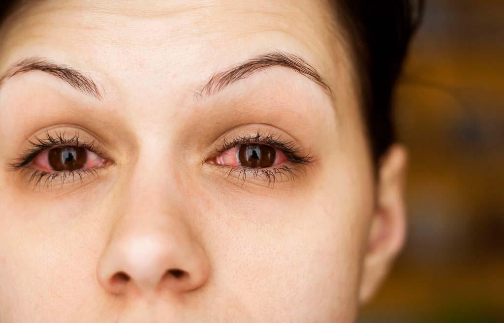 علامات الحمل من العين